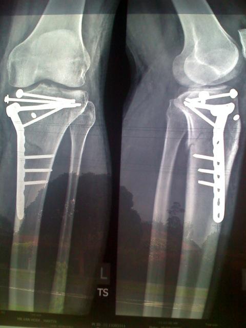 Xray-MVH-Skimetric-Broken-Leg-Skier-Fixed